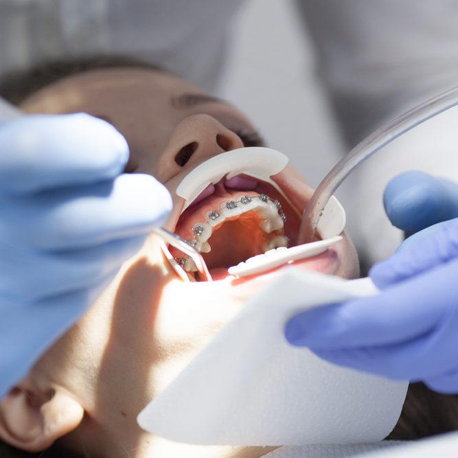 dac17_patient_braces_1000